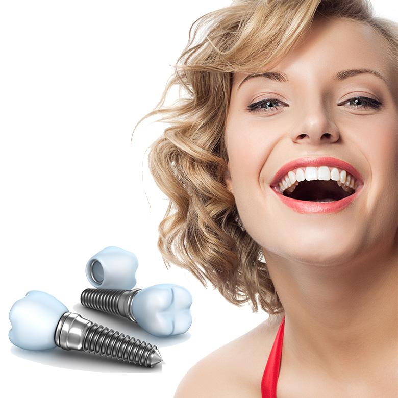 Intrebari frecvente despre tratamentul cu implant dentar