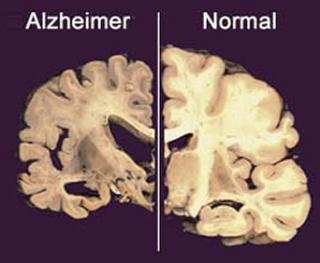 Un vaccin impotriva Alzheimer va fi testat pe oameni incepand din februarie