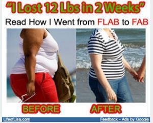Obezitatea este, oficial, incurabila