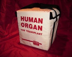 Primul transplant din Romania intre gemeni identici