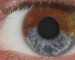 Ti-ai dorit mereu sa ai ochii albastri? In curand ii vei putea avea pentru 5.000 de dolari