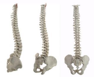 Osteoporoza poate evolua tacut. Atentie la simptomele ei!