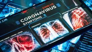Specialist: Chiar daca scapam acum de coronavirus, el va reveni la toamna