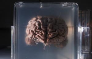Un startup vrea sa conserve creierele decedatilor, pentru a