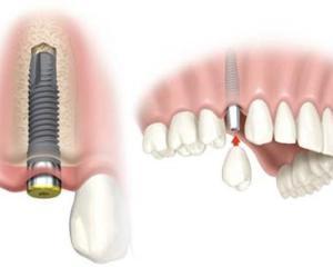 Care sunt avantajele si dezavantajele unui implant dentar