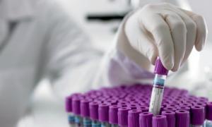 Biochimistii alerteaza populatia: analizele de laborator - efectuate de absolventi fara pregatire speciala