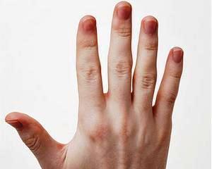 Daune morale pentru pierderea unei maini intr-un accident rutier: 200.000 de euro