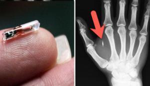 Intr-o tara europeana, oameni au inceput sa-si implanteze microcipuri sub piele