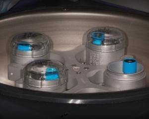 PRFG-Endoret, noua tehnica pentru refacere si vindecare a tesuturilor