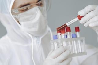 Vesti bune: pretul mediu al unui test RT-PCR a scazut la 322 de lei, de la 520 de lei, in 2020
